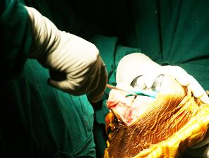 Orthopedics doctors in Coimbatore, Best Orthopedics Surgeon